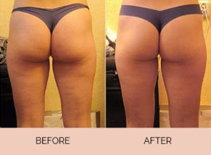 Cellulite-Factor-Results