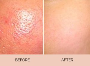 Pore Minimization Treatment