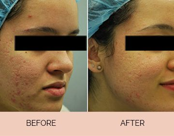 Erythema and post-Acne Redness