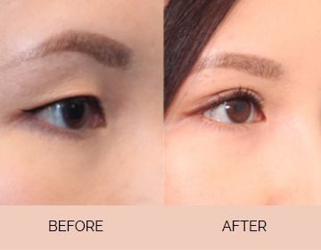 Eyelid Surgery, Eye bag fat Removal