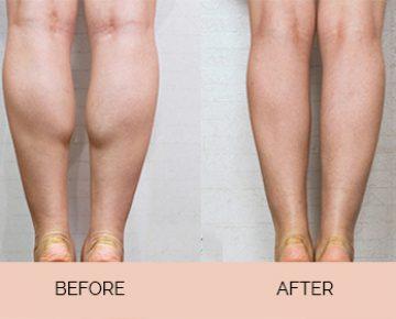 Calf muscle enlargement