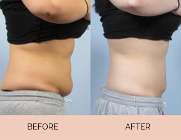 Slimming & Cellulite Reduction