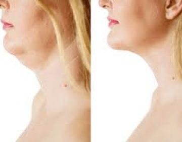 Neck Lift (Chin Lipectomy)