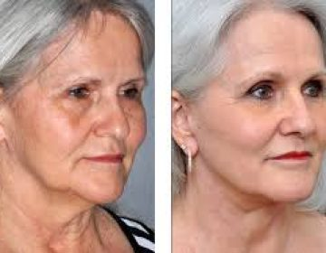 Facial Augmentation by Fat Graft