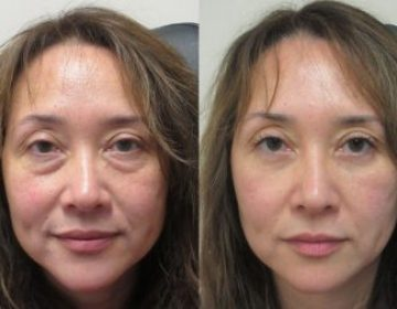 Double Eyelid Surgery & Eyes Bag Removal