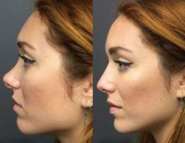 Nasal Augmentation By Silicone